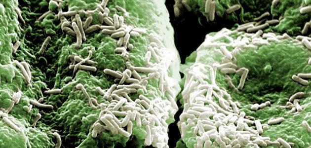Demuestran que bacterias lácticas aisladas de aceitunas de mesa presentan un elevado potencial probiótico